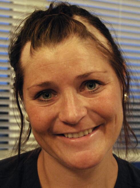 <strong>HÅRLØSE FLEKKER:</strong> May Brit mistet håret flekkvis, og i starten hadde hun hårløse flekker i hodebunnen. Foto: Privat,