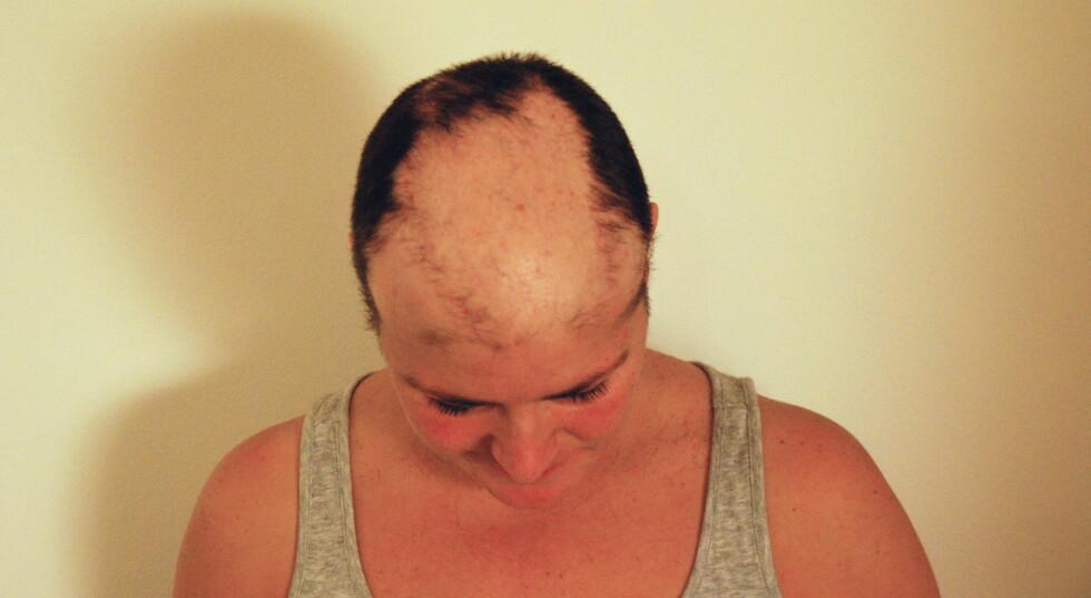 <strong>MISTET HÅRET PÅ TOPPEN:</strong> May Brit forteller at hun mistet håret på hoppen av hodet, og hadde lange tynne hårstrå langs sidene. Til slutt barberte hun bort alt. Foto: Privat.