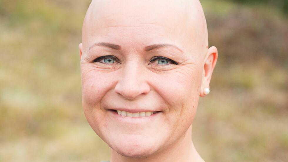 <strong>ALOPECIA AREATA:</strong> May Brit var 29 år da hun fikk de første hårløse flekkene i hodebunnen. De fleste med sykdommen alopecia areata får symptomer før de fyller 30 år. Foto: Kristin Hefte/Alopeciaforeningen