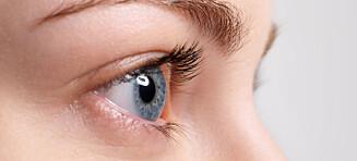 - I 2015 var det 37 nordmenn som fikk diagnosen føflekkreft i øyet