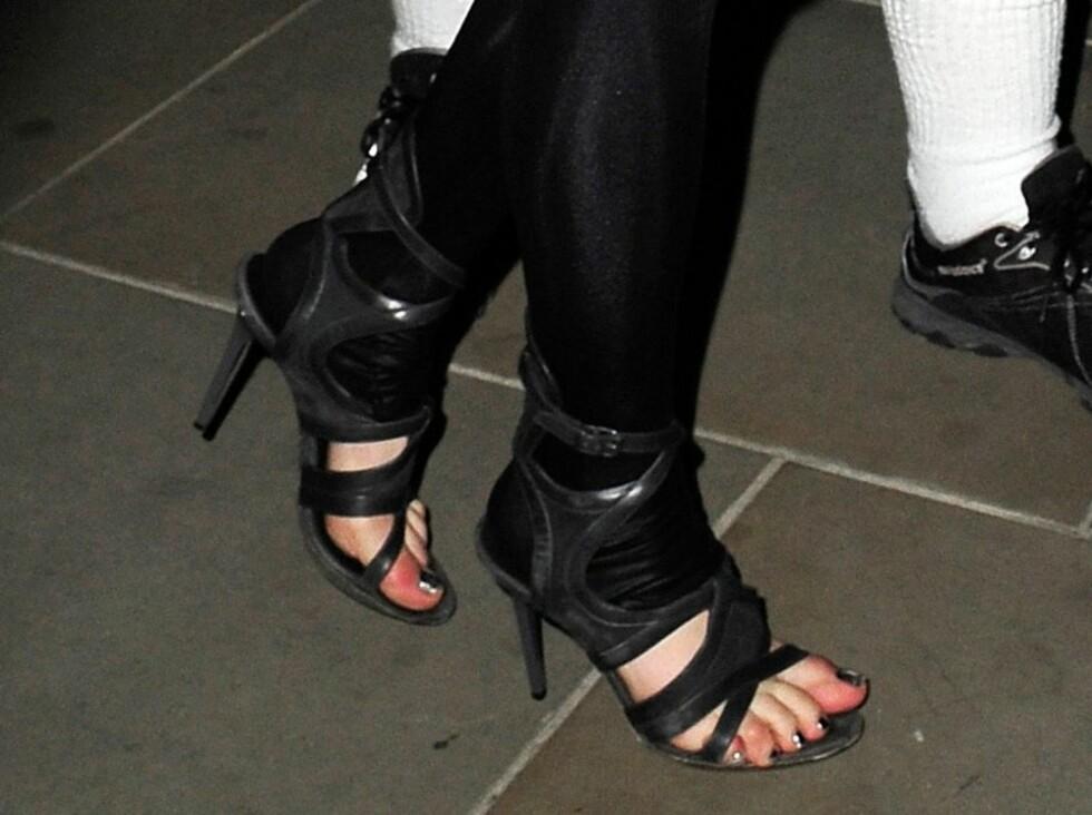 MISHANDLET: Lady GagGas føtter ute i hardt vær.  Foto: All Over Press