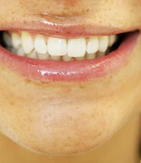 Se så hvite tenner! Jeg er kjempefornøyd.