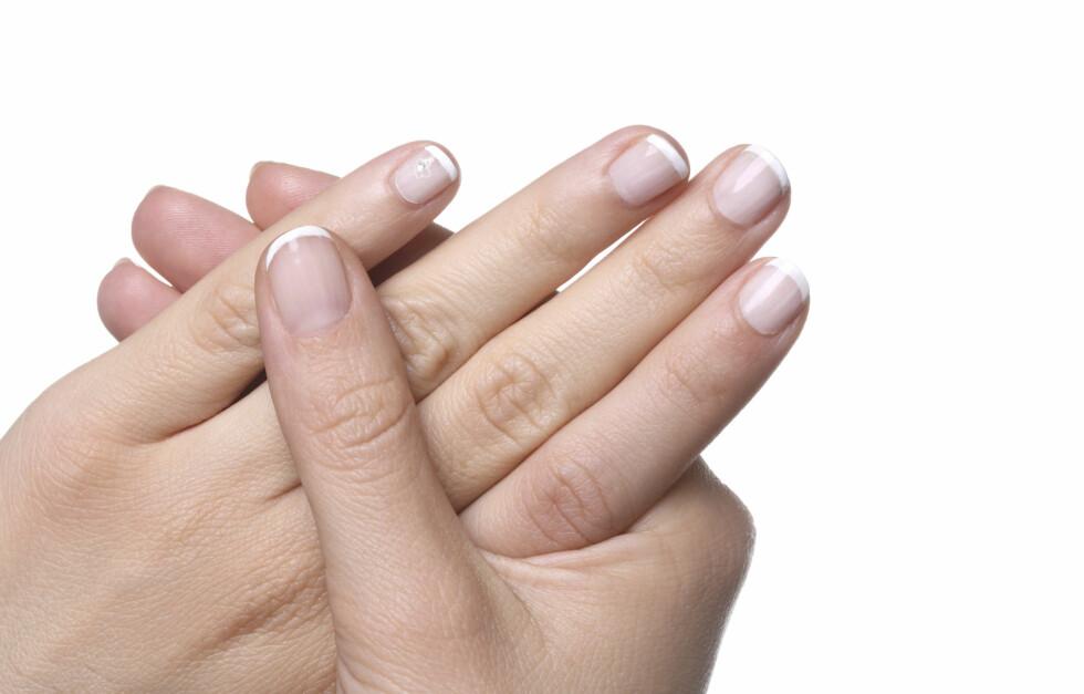 FJERN LAKKEN: Du trenger bare én bomullsdott, litt neglelakkfjerner og litt tålmodighet for å fjerne neglelakken både effektivt og skånsomt.   Foto: Thinkstock