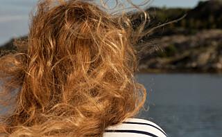 Rødtopper har større risiko for hudkreft