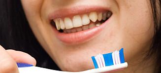 Sjekk hvorfor tennene dine blir gule