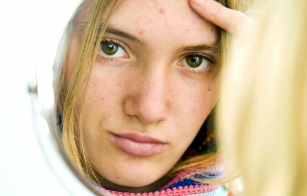 VINTERPLAGE: Kan skitten lue være grunnen til at du får kviser i pannen? Foto: All Over Press