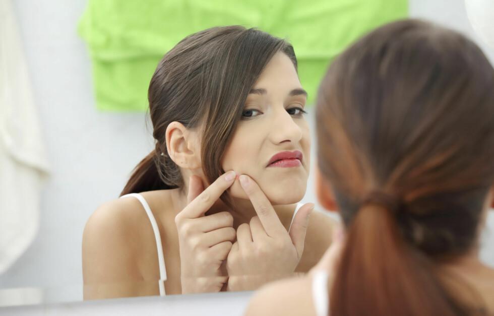 KVISER: Kviser er noe svært mange kvinner - og menn, får. Nå kan forskere ha oppdaget en kur mot problemet! Foto: Getty Images/iStockphoto