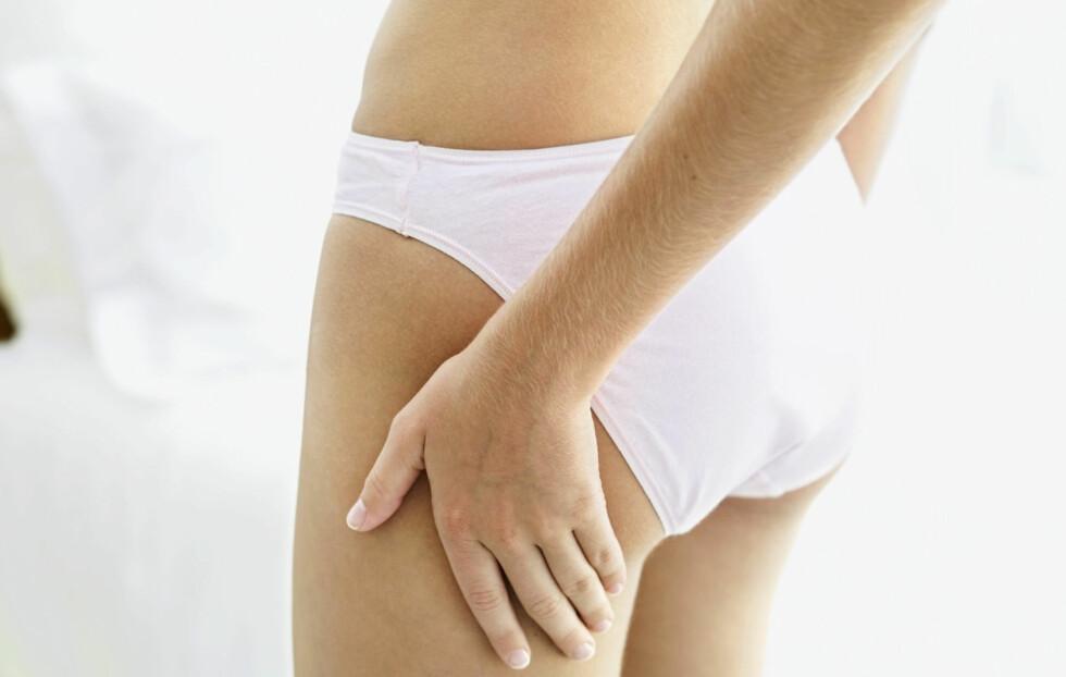 CELLULITTER: 85 prosent av kvinner får cellulitter en eller annen gang i løpet av livet.  Foto: Thinkstock
