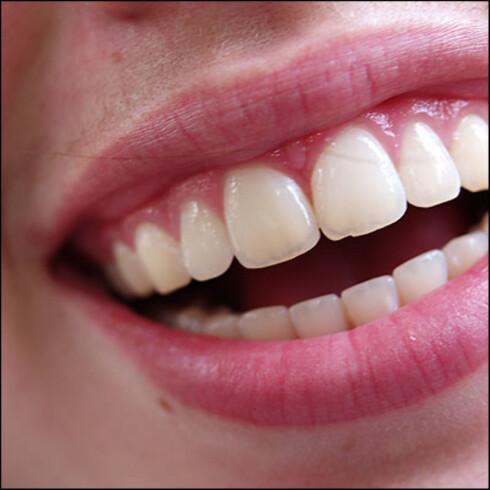 VIKTIG: God tannhygiene er viktigere enn de fleste av oss tror, og kan forhindre en rekke sykdommer.  Foto: Colorbox