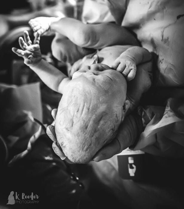 AVLANG HODEFORM: Dette bildet viser at hodeformen var ganske avlang, noe som ifølge jordmor er mer normalt ved en fødsel. Foto: K. Reeder Photography