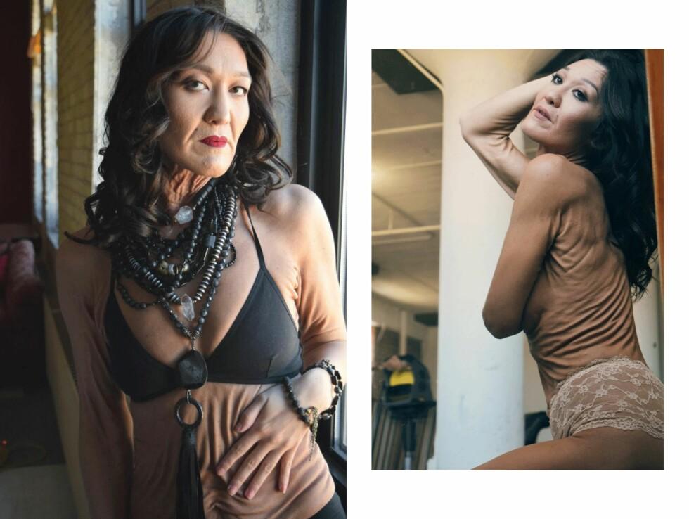 MODELLSPIRE: Sara Geurts vil bruke modellkarrieren til å sette fokus på Ehlers-Danlos. Foto: Briana Berglund