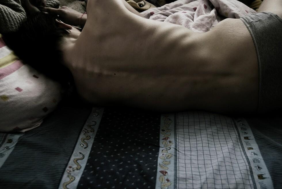 SPISEFORSTYRRELSER: Anoreksi er den meste dødelige av spiseforstyrrelsene som finnes i dag, men ortoreksi kan også ha alvorlige konsekvenser for den fysiske og psykiske helsen. Foto: deliat - Fotolia