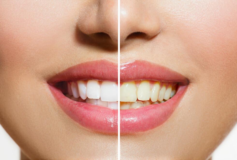 ISING: Vær obs på at 70 prosent av oss vil oppleve ising i tennene etter bleking. Foto: Subbotina Anna - Fotolia