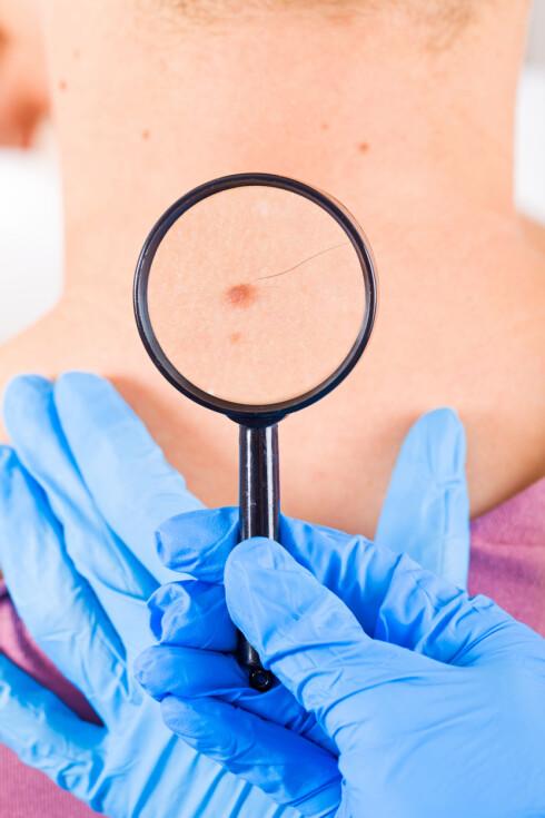 HORMONER OG SOL: Dette er de største årsakene til at føflekker oppstår, men skader mot huden kan også bidra, forklarer legen. Foto: Ocskay Bence - Fotolia