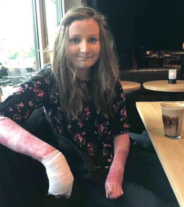 Hender som vokser sammen: Sanja har prøvd å operere høyre hånd flere ganger, men det tar kun et par år før de vokser sammen igjen. (Foto: Privat)
