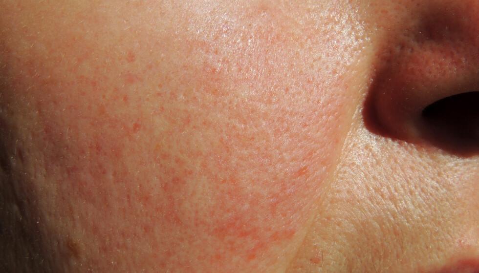 ROSACEA: Rosacea er en kronisk betennelse som gir rødhet i huden i ansiktet. FOTO: NTB Scanpix