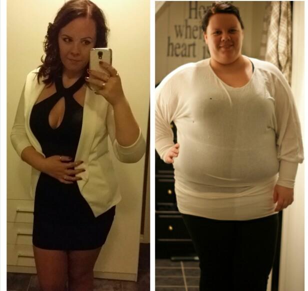 ENORM FORSKJELL: På operasjonsdagen veide Kristine over 130 kilo, og hun slet med å gjøre helt hverdagslige ting. (Foto: Privat)