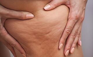 Det finnes en rekke cellulitt-behandlinger på markedet - men virker de?