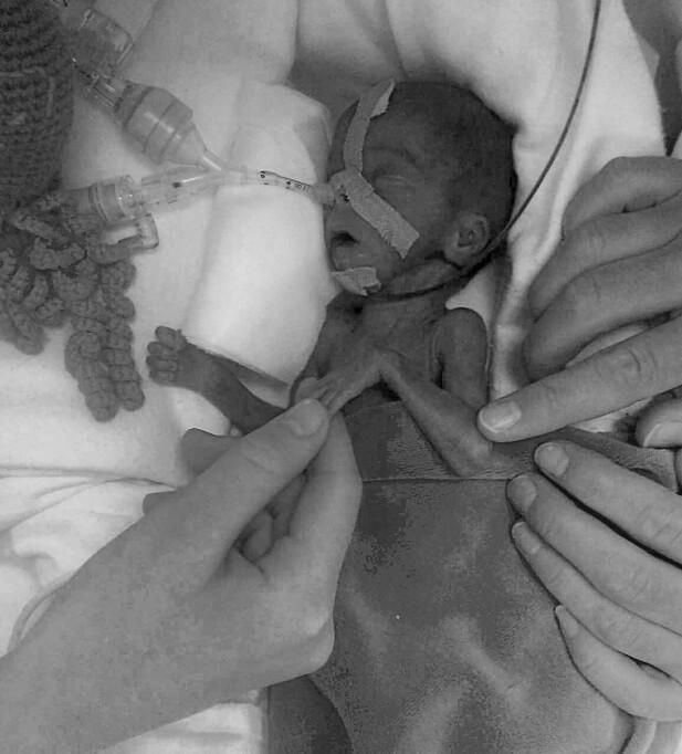 BJØRN: Bjørns lille hånd holder i mammas finger. Han og søsteren Ingrid ble født i uke 24. Bjørn var bare 660 gram og døde etter kort tid. FOTO: Privat