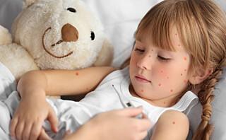 Ikke gi barn med vannkopper Ibux