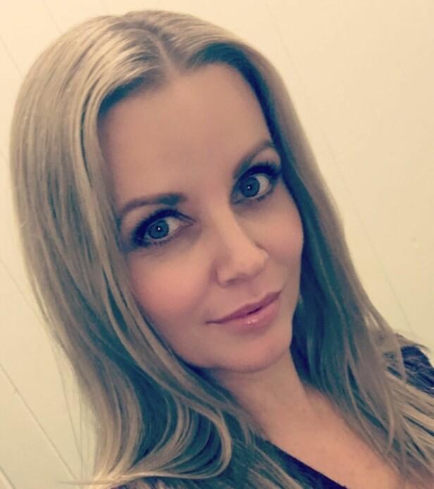 REAGERER: Catrine Nedregård Pedersen er autorisert spesialist i botox og fillerinjeksjoner. Hun synes det er skremmende at unge jenter går etter pris når de skal fylle på leppene sine. FOTO: Privat