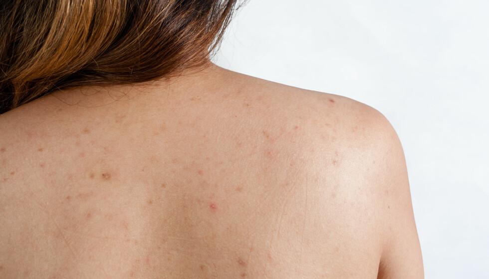AKNE: Svært mange voksne får akne, og noen får dem hovedsakelig på overkroppen. Det kan det være flere grunner til. FOTO: NTB Scanpix