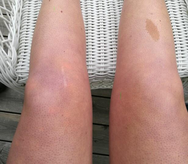 HOVEN OG BLÅ-RØD: Syndromet har spredt seg fra Tonjes venstre kne til større deler av beinet, i tillegg til høyre bein. FOTO: Privat