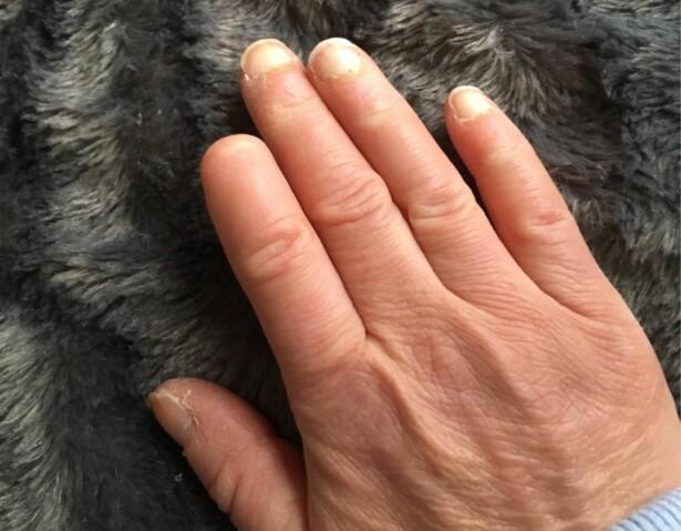 MÅTTE AMPUTERE: Trine fikk koldbrann i den ene fingeren, og måtte amputere deler av den. FOTO: Privat