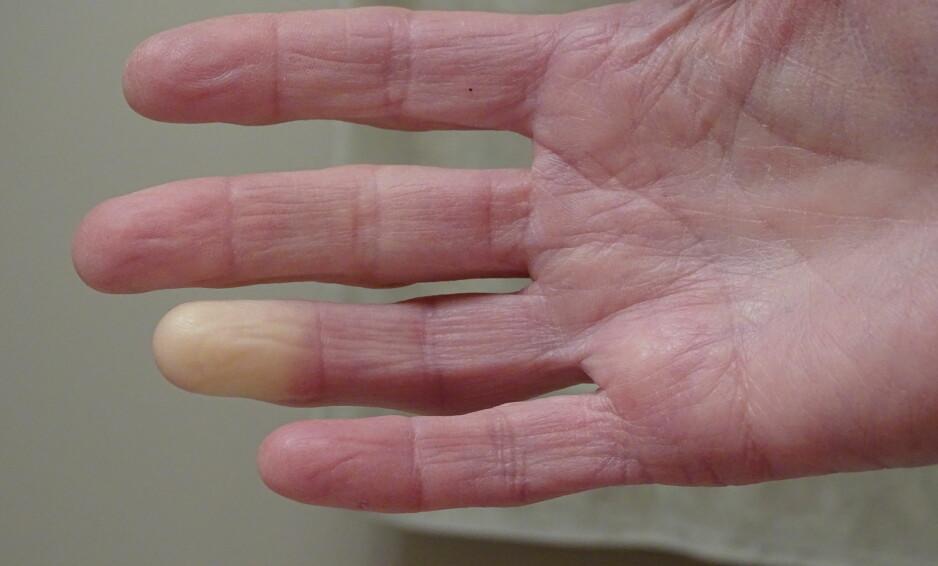 LIKFINGRE: Raynauds fenomen er en sykdom som er svært vanlig, men som få har hørt om. FOTO: NTB