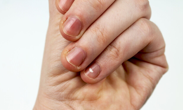 HVITE FLEKKER PÅ NEGLENE: En vanlig oppfatning er at små, hvite flekkene på neglene skyldes kalsiummangel eller mangelsykdommer. FOTO: NTB Scanpix
