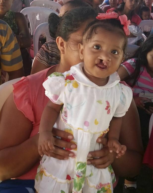 NYTT SMIL: En liten jente i Nicaragua, som snart skal få et nytt smil. FOTO: Privat