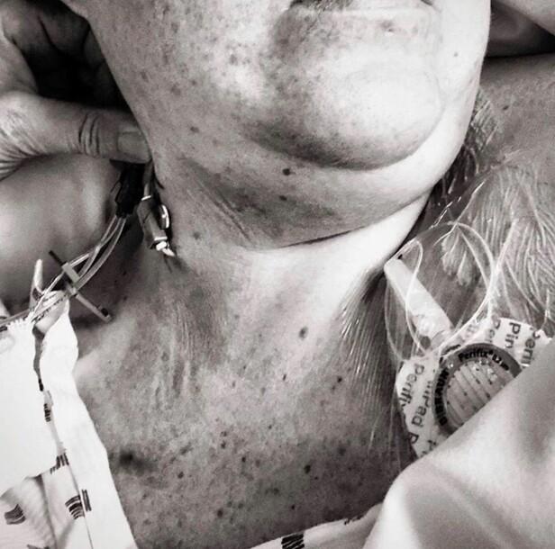 ETTER OPERASJONEN: Annja hadde denne tilkoblingen sydd fast i kroppen i flere uker, slik at hun skulle få i seg næring og smertestillende. FOTO: Privat