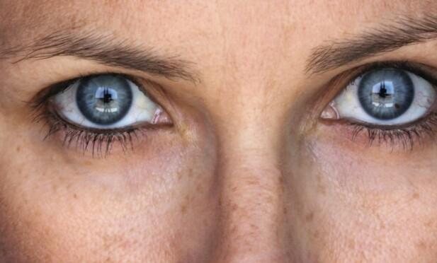 PIGMENTFLEKKER: Det er særlig tre hovedelementer som utgjør om du får pigmentflekker eller ei: Gener, sol-/UV-eksponseringer og hormoner. FOTO: NTB scanpix