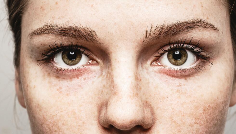 FØFLEKKREFT PÅ ØYET: Mennesker som lett får fregner har også lettere for å få føflekker i øynene. FOTO: NTB Scanpix