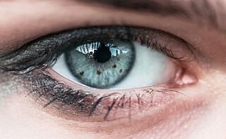 Har du en brun flekk på øyet?
