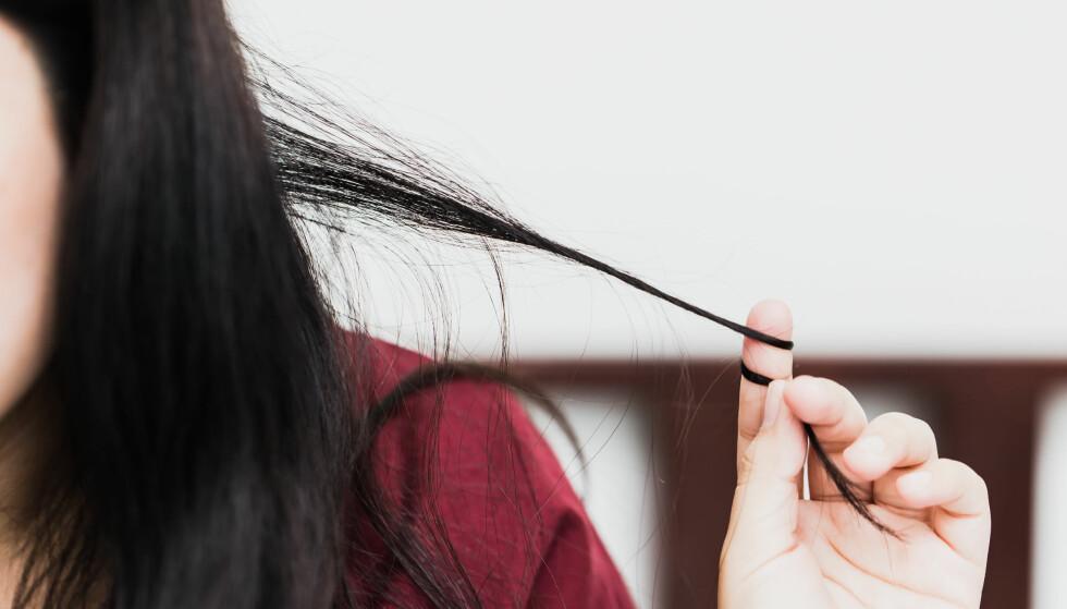 TRIKOTILLOMANI: For de fleste virker det rart å være oppsatt på å nappe av seg håret, men ikke for de med trilotillomani. Foto: SCANPIX