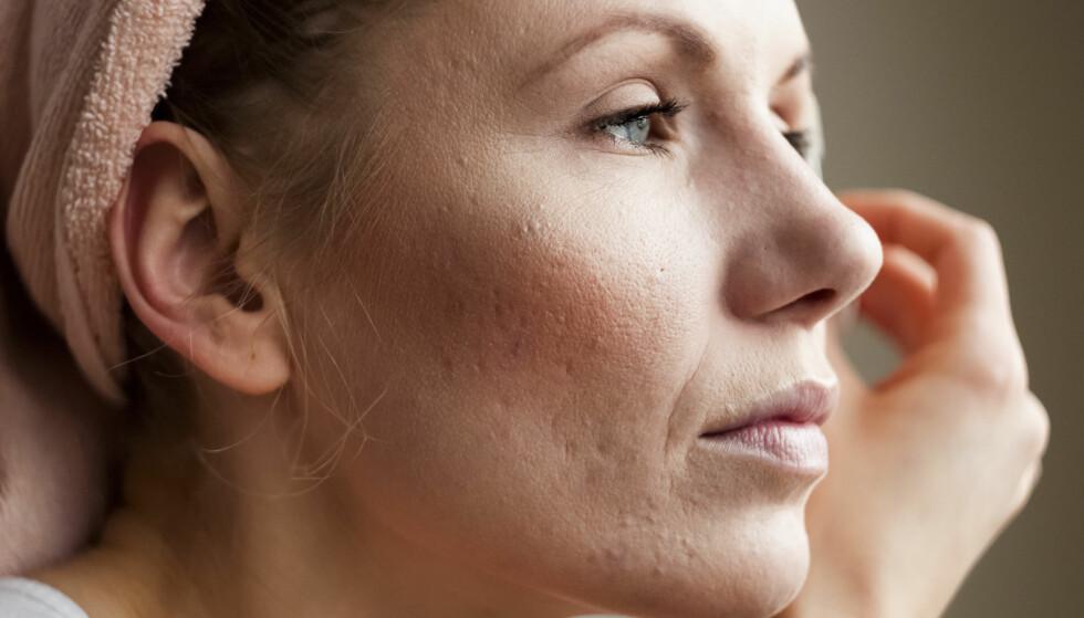 FOREBYGGE HUDSYKDOMMER: Det er heldigvis noe vi kan gjøre når vi får en hudsykdom. FOTO: NTB Scanpix