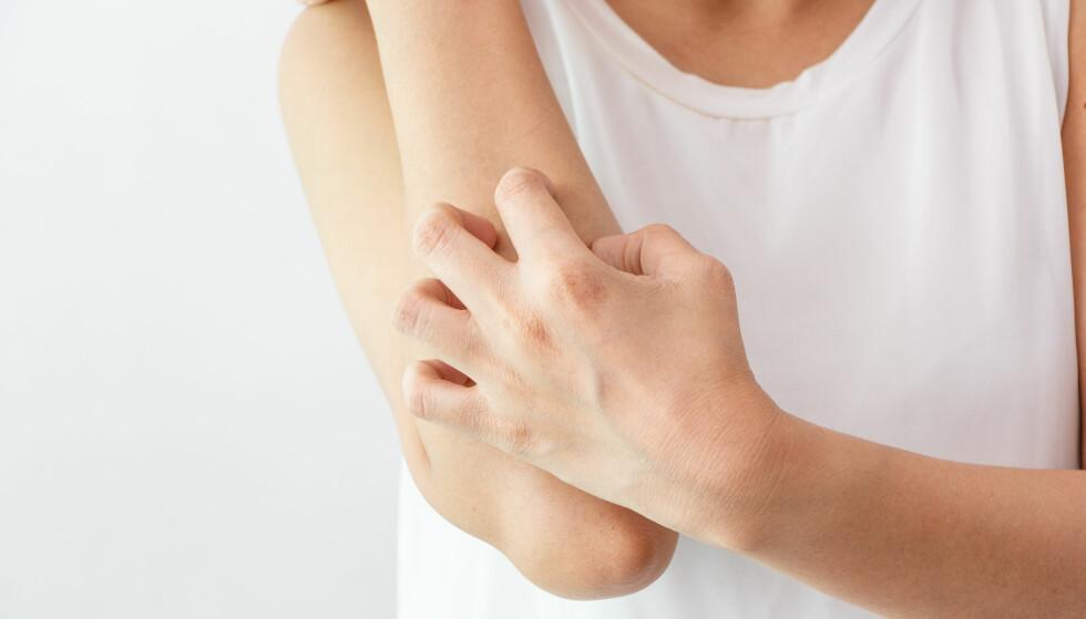 HUDSYKDOMMER: Det er særlig tre typer hudsykdommer vi nordmenn sliter med. FOTO: NTB Scanpix