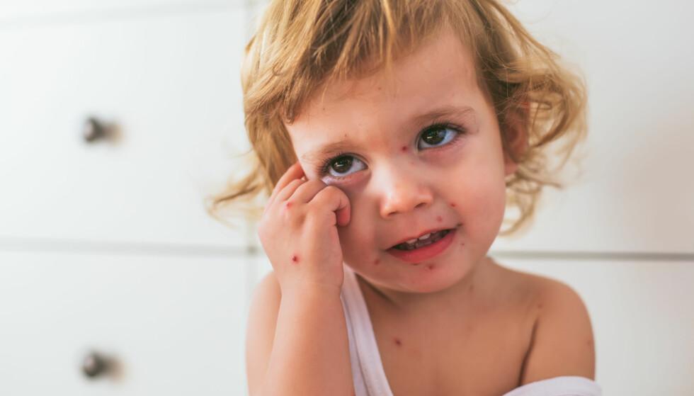 VANNKOPPER:  For gravide er det som regel ikke noe større risiko for komplikasjoner ved barnesykdommer enn det er for andre voksne, men vannkopper er et unntak, som i større grad enn hos ikke-gravide kan gi lungebetennelse hos gravide. FOTO: NTB Scanpix