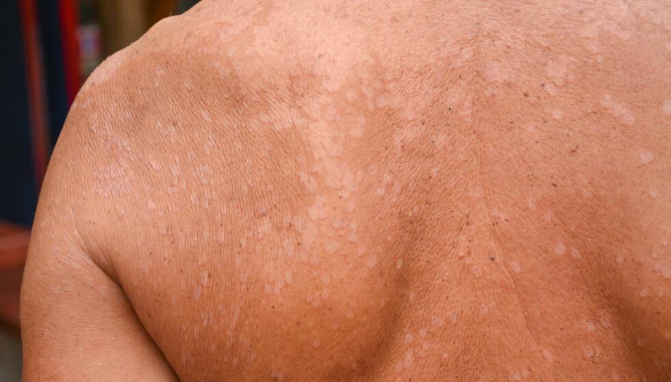 KAN VÆRE SOPP: Hvite flekker i huden kan være sopp. Det er ikke farlig eller smittsomt, men noen opplever å klø og flasse. FOTO: NTB Scanpix