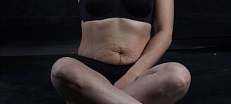 Før hatet Ingerine kroppen sin. Hun hadde mest lyst til å finne en saks og klippe vekk det ekstra kjøttet på magen