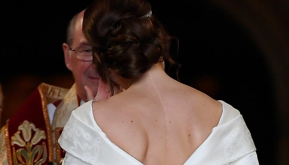 VILLE IKKE SKJULE ARRENE: Prinsesse Eugenie ble operert da hun var 12 år. Da hun fikk designet brudekjolen ønsket hun at arret skulle være en del av kreasjonen. FOTO: NTB Scanpix