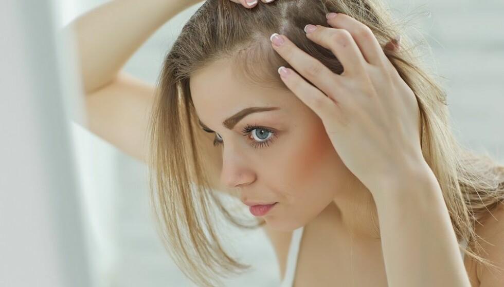 TYNNERE HÅR: Vi kan miste mer hår i perioder. FOTO: NTB Scanpix