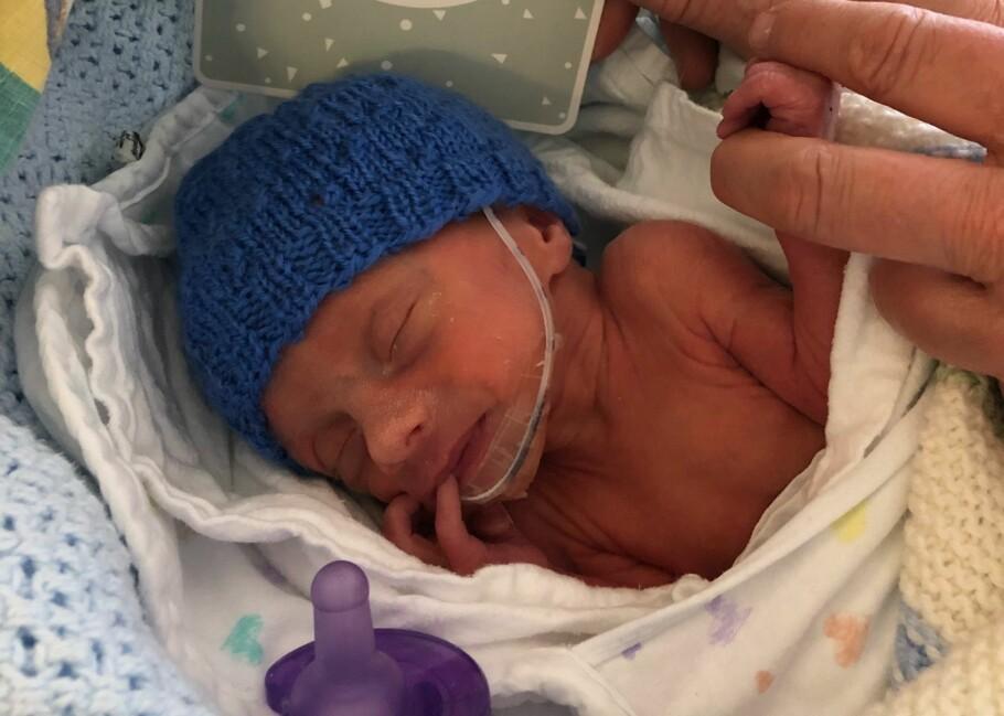 FØDT FOR TIDLIG: For å redde morens liv måtte Theodor bli født ved keisersnitt i uke 32. FOTO: Privat