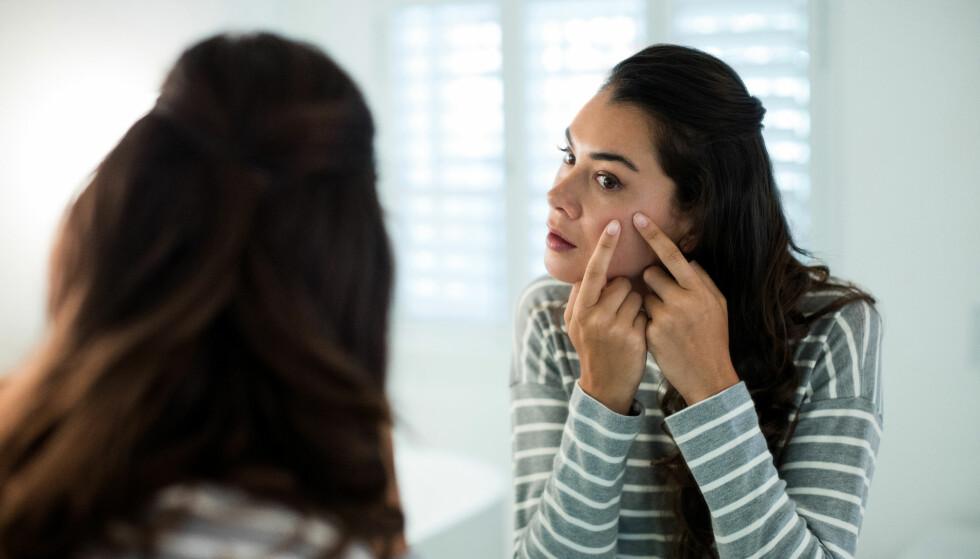 VOKSEN-KVISER: Undersøkelser viser at voksen-kviser oppstår hos 25 prosent av voksne menn og 50 prosent av voksne kvinner på et eller annet tidspunkt. FOTO: NTB Scanpix