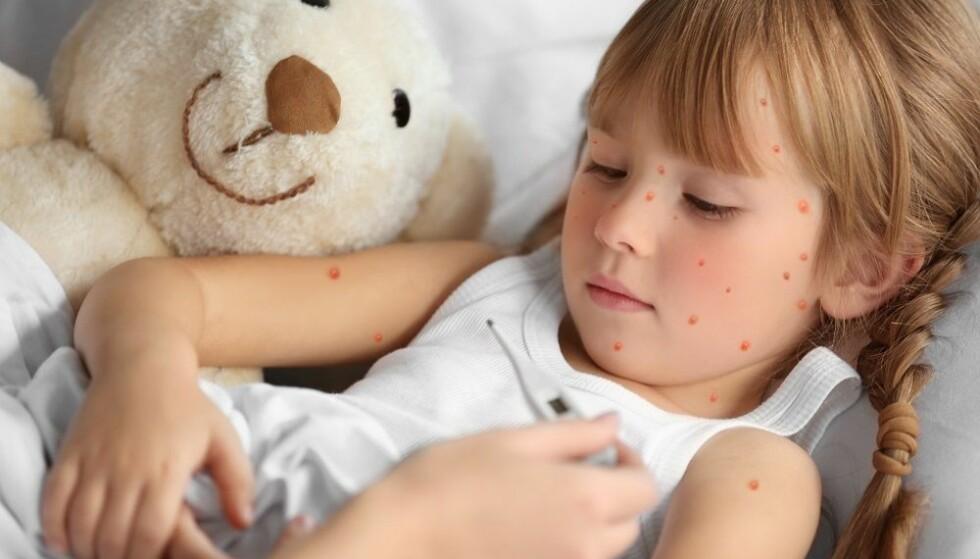 VANNKOPPER: De aller fleste får vannkopper som barn, men noen får sykdommen som voksne. FOTO: NTB Scanpix