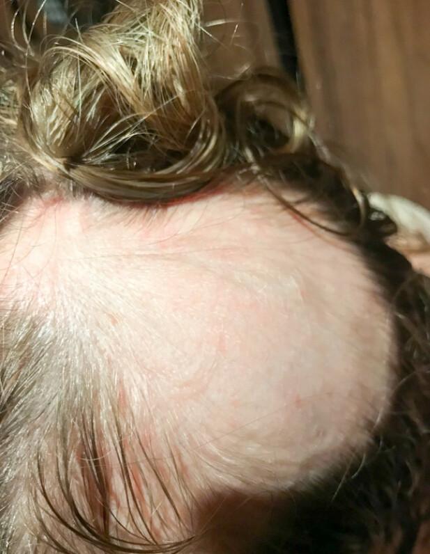 MISTET MASSE HÅR: Etterhvert mister Gro enda mer hår og blir helt skallet på halve hodet. Vekten raser også nedover. FOTO: Privat