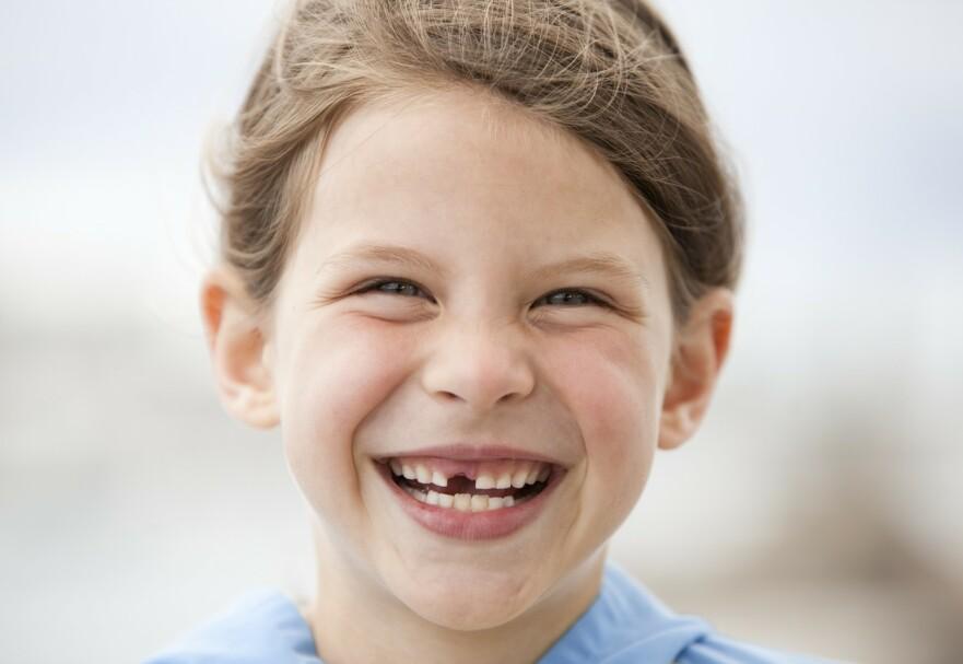 MELKETENNER: Ifølge forskning kan det være flere gode grunner til å ta vare på barnas melketenner. FOTO: NTB Scanpix