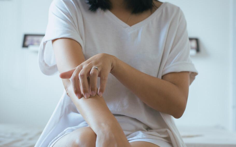 KLØE: Kløe skyldes som oftest ikke alvorlige tilstander, men langvarig eller svært sterkt kløe bør sjekkes opp. FOTO: NTB Scanpix