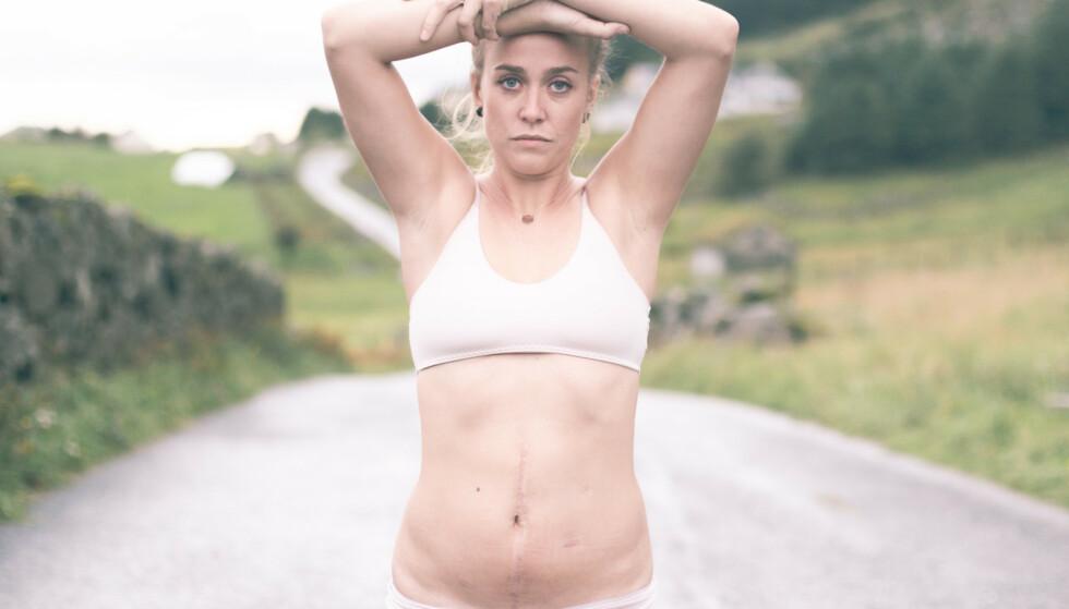 <strong>FORTSATT TABUBELAGT MED KREFT I UNDERLIVET:</strong> Gunhild Næss (30) mener hun selv hun var fanget i «kreftskapet», og skammet seg over egen diagnose. Nå ønsker større åpenhet rundt seksualitet og sykdom. FOTO: Salt and Wax Studios